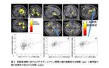 初回参加時におけるビデオゲームプレイ時間と脳の拡散性の正相関(a,b)と数年後の脳の拡散性の変化の正相関(c,d,e)の画像