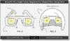 マイクロソフトが小型ディスプレイを搭載したゲーミングヘルメットの特許を登録していたの画像